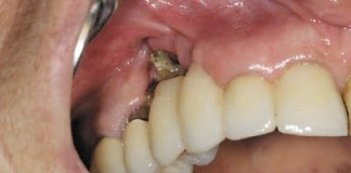 Natural cures for tooth abscess
