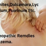 eczemahomeopathicremediestreatment Sulphur Ointment Uses in Homeopathy for Skin Complaints
