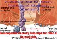 homeopathic-remedy-selection-for-piles
