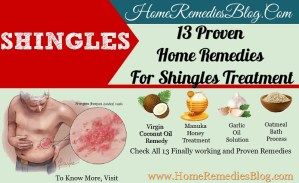 13 Powerful Home Remedies For Shingles Treatment