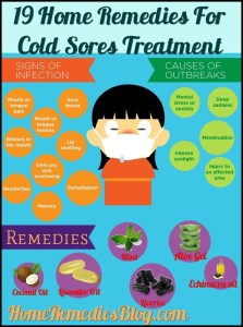 19 Effective Home Remedies For Cold Sores Treatment