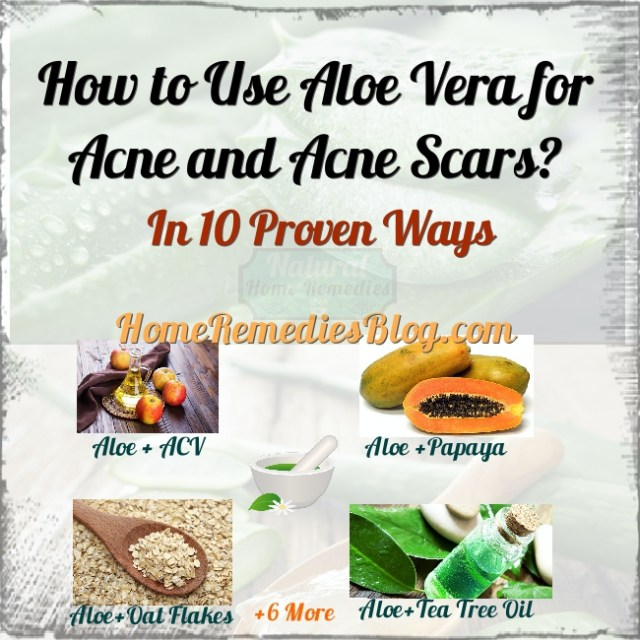 How to use Aloe Vera for Acne Removal