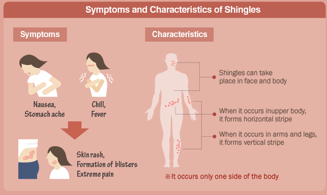 Foods To Eat With Shingles