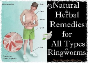 21 Homemade Remedies for Ringworm Treatment