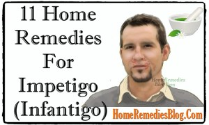 Top 11 Home Remedies To Treat Impetigo Effectively