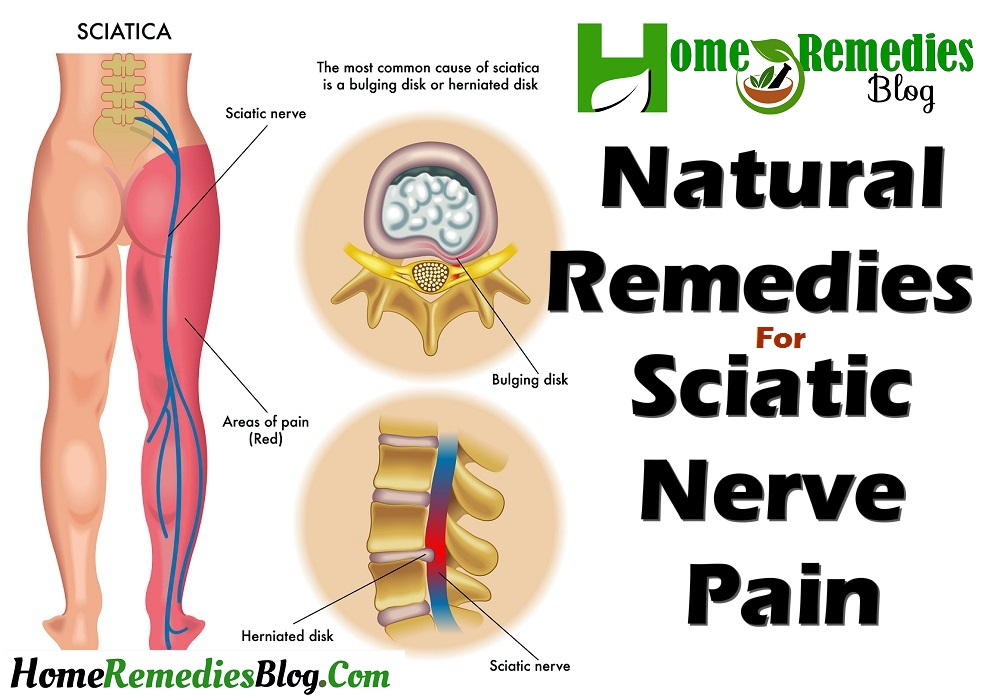 Natural Home Remedies For Sciatic Nerve Pain