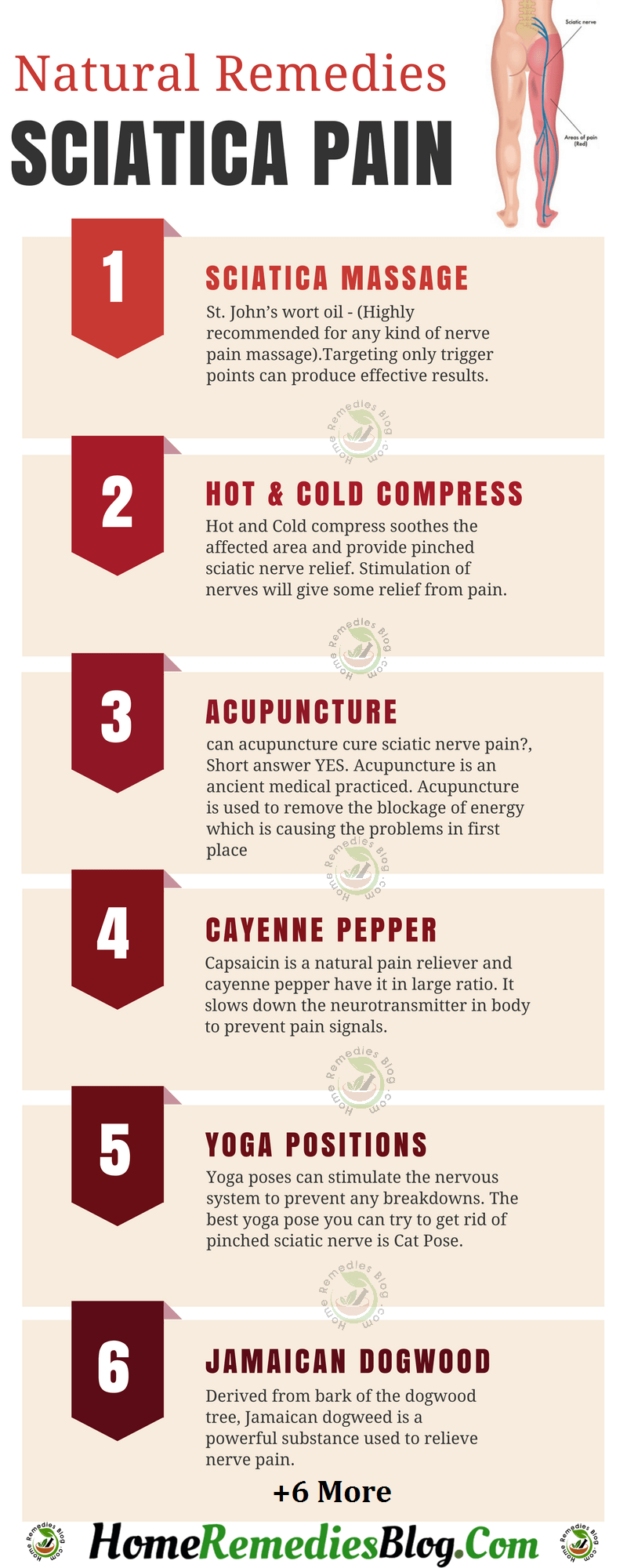 Best Natural Remedies For Sciatic Nerve Pain Relief Infographics