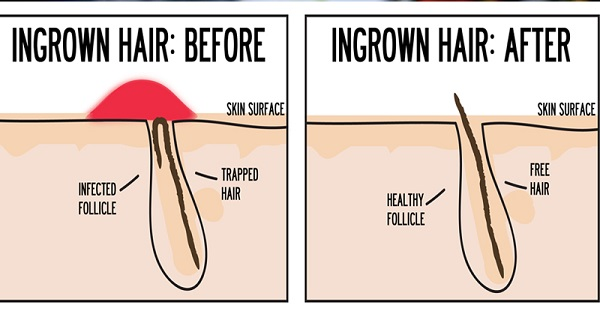 Home Remedies For Ingrown Pubic Hair