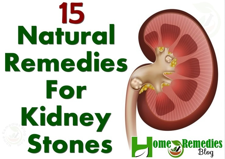 15 Natural Remedies For Kidney Stones With Diet Plan Home Remedies