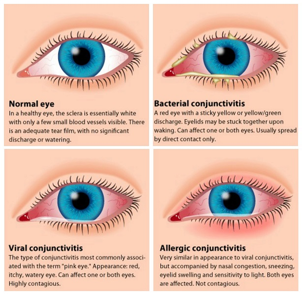 how to you get conjunctivitis