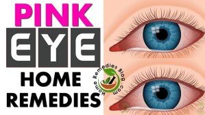 How To Get Rid of Pink Eye With Home Remedies