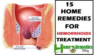 Home Remedies For Hemorroids