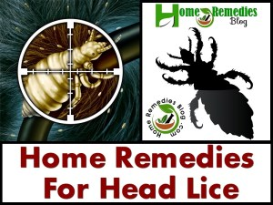 15 Home Remedies For Head Lice and Nits