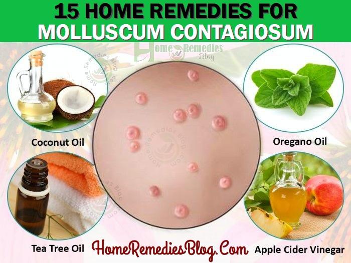 15 Home Remedies For Molluscum Contagiosum Natural Treatment