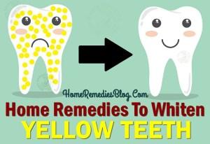 15 Home Remedies To Whiten Yellow Teeth Naturally
