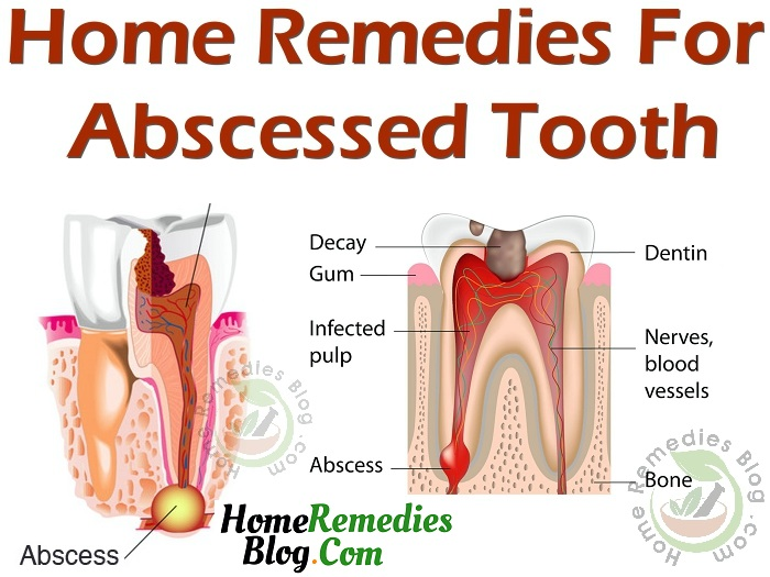 Best Home Remedies For Abscess Tooth