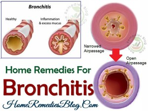 14 Proven Home Remedies To Cure Bronchitis Naturally