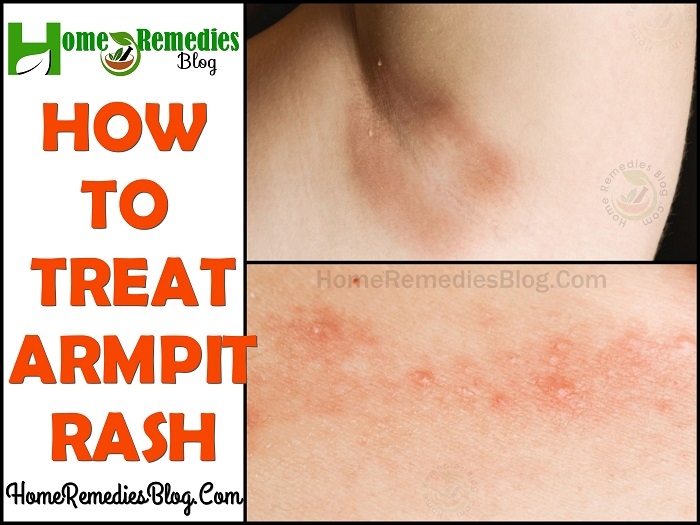 15 Home Remedies For Itchy Armpit Rash Home Remedies Blog