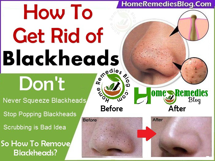 How To Remove Blackheads With Home Remedies