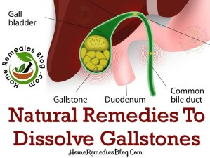 Top 10 Home Remedies For Gallstones Treatment