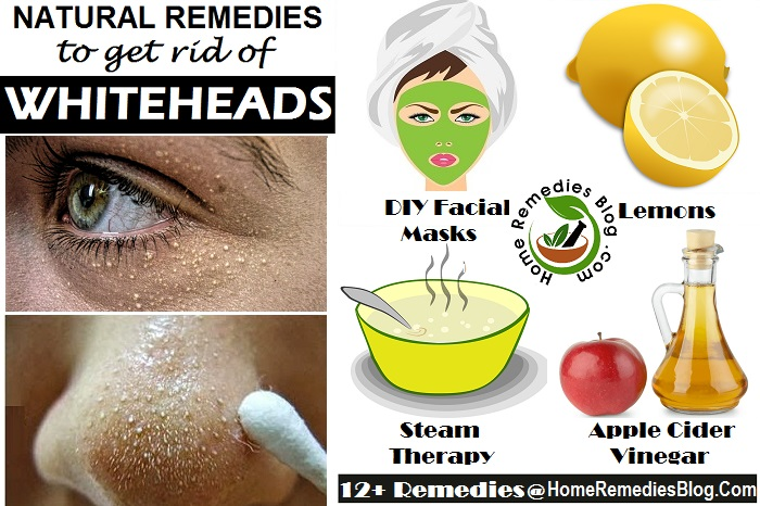 Natural Ways To Get Rid Of Whiteheads