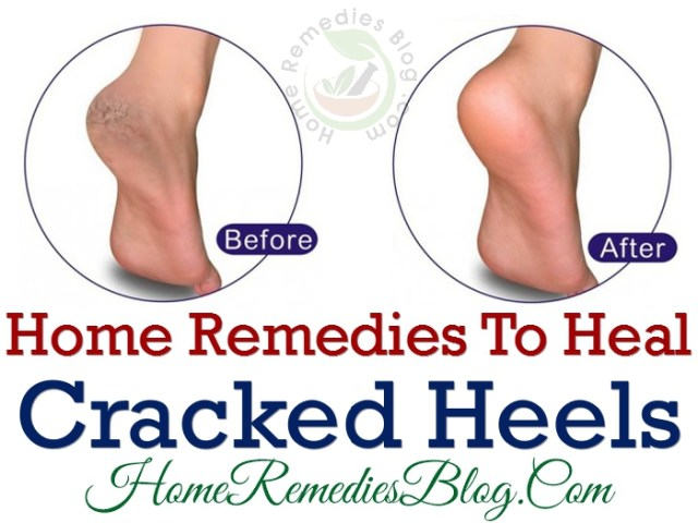 Home Remedies To Heal Dry Cracked Heels