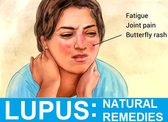 13 Best Natural Lupus Treatment And Remedies With Diet