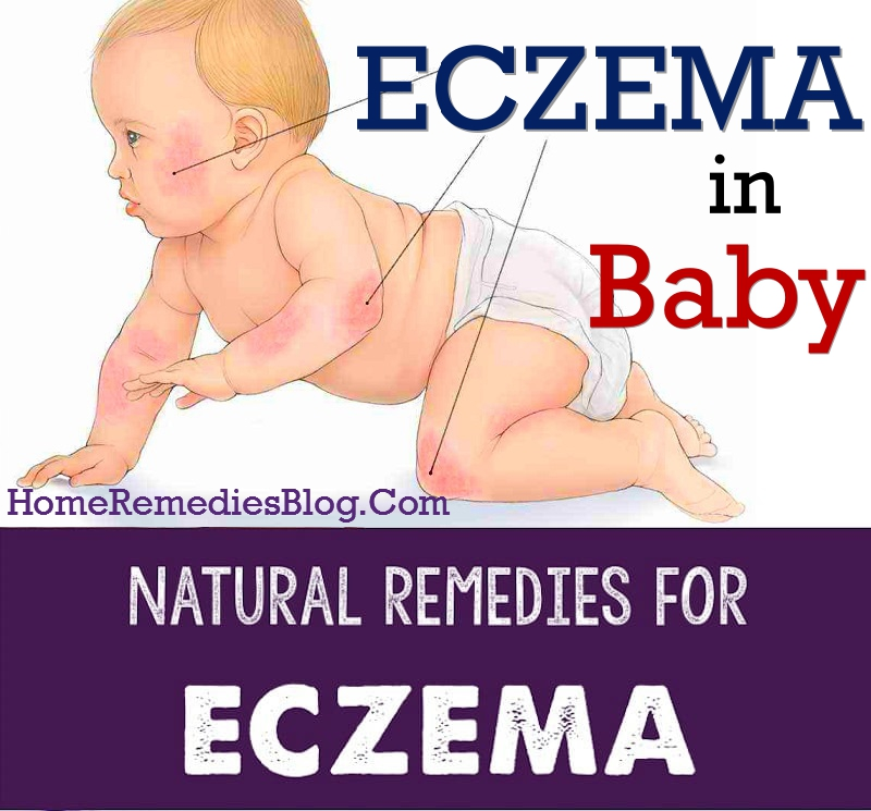 Effective Natural Remedies For Eczema in Baby
