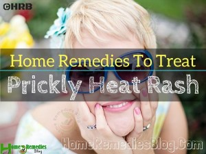 15 Effective Home Remedies to Treat Heat Rash Quickly