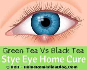 Eye Stye (Sty) Treatment- Green Tea Bag Vs Black Tea Bag