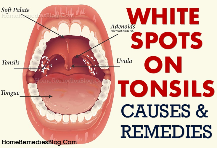 how to get rid of white spots on tonsils causes home remedies home remedies blog. Black Bedroom Furniture Sets. Home Design Ideas