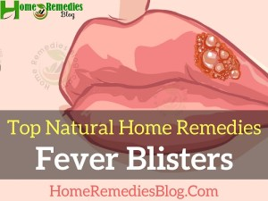 Home Remedies To Get Rid of Fever Blisters Effectively