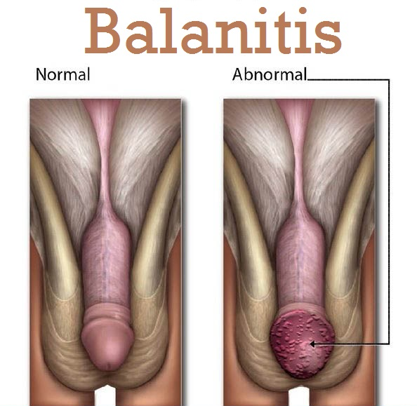 Bacterial Balanitis in Men