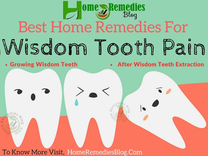 Best Home Remedies For Wisdom Tooth Pain Relief