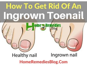 How To Get Rid Of An Ingrown Toenail Painlessly
