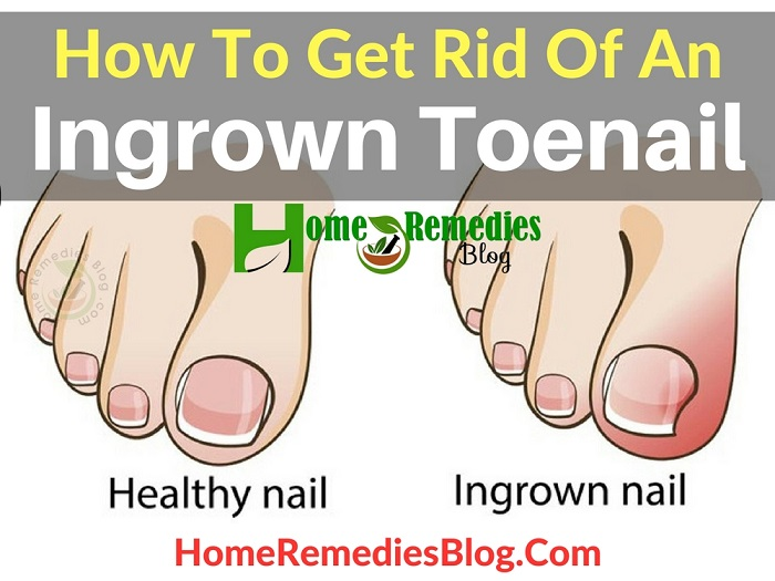 How To Get Rid Of An Ingrown Toenail Painlessly - Home Remedies Blog