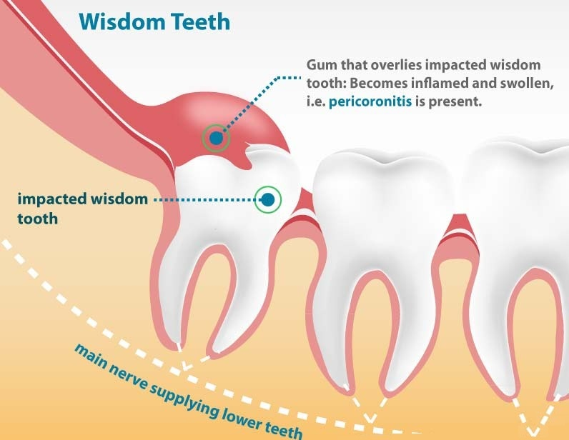 Natural Remedy For Impacted Tooth Pain