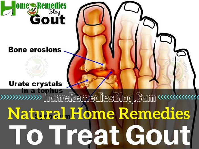 15 Proven Home Remedies for Gout With Diet Plan