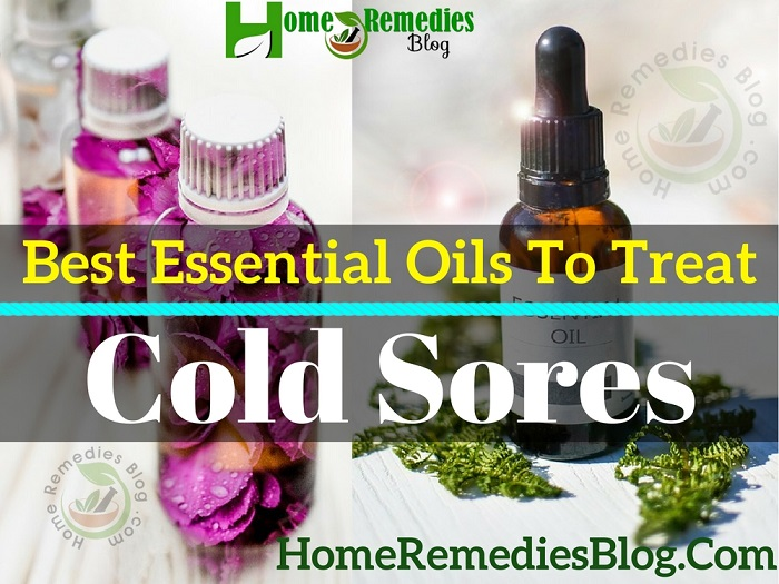 8 Best Essential Oils for Cold Sores Treatment
