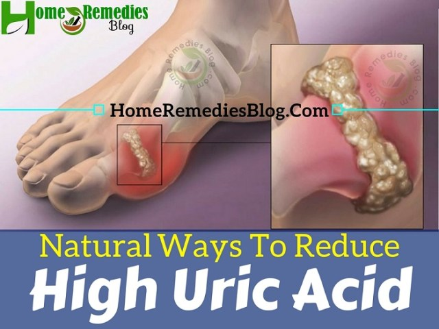 Best Home Remedies To Reduce Uric Acid Levels Naturally