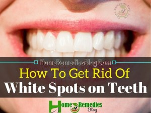 How to Get Rid of White Spots on Teeth: Causes & Home Remedies