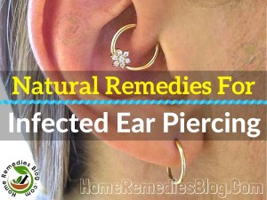 How to Treat Infected Ear Piercing Naturally
