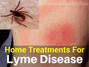 11 Home Treatments for Lyme Disease & Rash (Backed by Research)