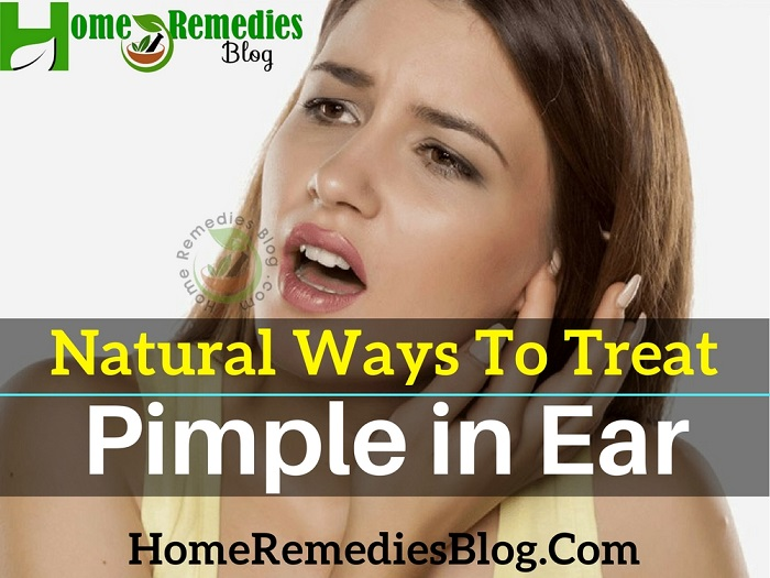 Natural Remedies To Get Rid of Pimple in Ear