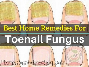 12 Best Home Remedies for Toenail Fungus