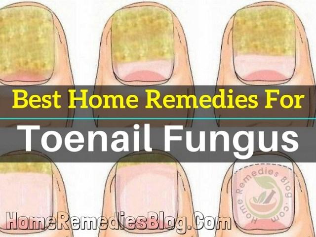 Top 12 Home Remedies for Toenail Fungus