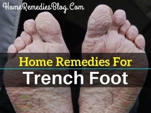 5 Best Home Remedies To Treat Trench Foot