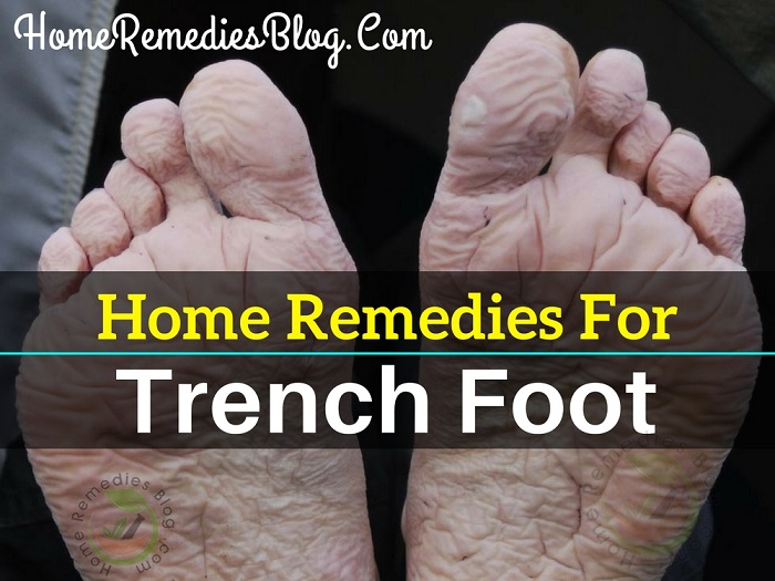 5 Best Home Remedies for Trench Foot
