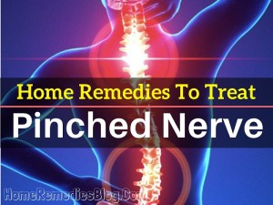 Top 12 Home Remedies To Treat Pinched Nerve