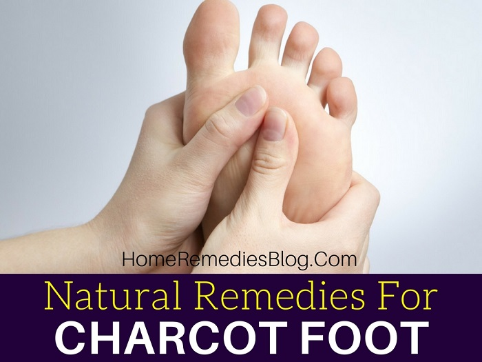 9 Effective Natural Treatments for Diabetic Charcot Foot